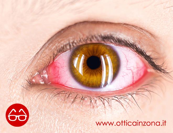 Occhio secco cause e rimedi naturali